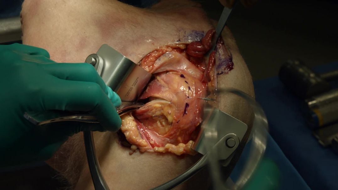 Anatomic Dissection for Anterior Reconstruction of a Shoulder